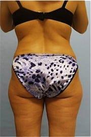 http://www.rhinoplasty.org/wp-content/uploads/2015/12/Layer-0-521.jpg