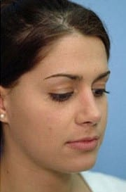http://www.rhinoplasty.org/wp-content/uploads/2015/12/Layer-0-7-e1456856979762.jpg