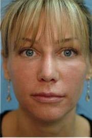 http://www.rhinoplasty.org/wp-content/uploads/2015/12/Layer-01-11.jpg