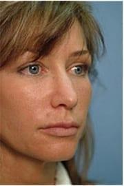 http://www.rhinoplasty.org/wp-content/uploads/2015/12/Layer-01-31.jpg