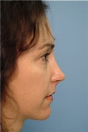 http://www.rhinoplasty.org/wp-content/uploads/2015/12/Layer-01-3-copy.jpg