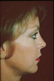 http://www.rhinoplasty.org/wp-content/uploads/2015/12/Layer-01-3-copy1.jpg