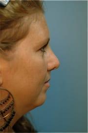http://www.rhinoplasty.org/wp-content/uploads/2015/12/Layer-01-51.jpg