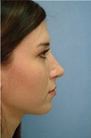 http://www.rhinoplasty.org/wp-content/uploads/2015/12/Layer-01-8-e1456857182661.jpg