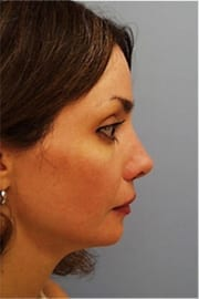 http://www.rhinoplasty.org/wp-content/uploads/2015/12/Layer-010-7-copy2.jpg