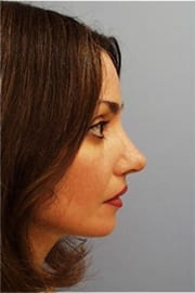 http://www.rhinoplasty.org/wp-content/uploads/2015/12/Layer-010-7-copy1.jpg