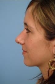 http://www.rhinoplasty.org/wp-content/uploads/2015/12/Layer-012-3-copy.jpg