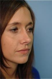 http://www.rhinoplasty.org/wp-content/uploads/2015/12/Layer-012-5-copy.jpg