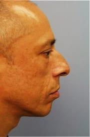 http://www.rhinoplasty.org/wp-content/uploads/2015/12/Layer-013-3-copy.jpg