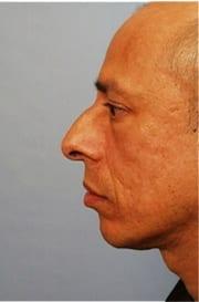 http://www.rhinoplasty.org/wp-content/uploads/2015/12/Layer-013-7-copy.jpg