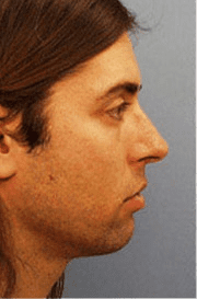 http://www.rhinoplasty.org/wp-content/uploads/2015/12/Layer-015-3_04.png
