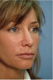 http://www.rhinoplasty.org/wp-content/uploads/2015/12/Layer-016-3-copy.jpg