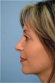 http://www.rhinoplasty.org/wp-content/uploads/2015/12/Layer-017-3-copy.jpg