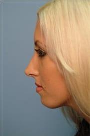 http://www.rhinoplasty.org/wp-content/uploads/2015/12/Layer-018-3-copy.jpg