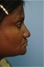 http://www.rhinoplasty.org/wp-content/uploads/2015/12/Layer-02-11-e1456857386294.jpg