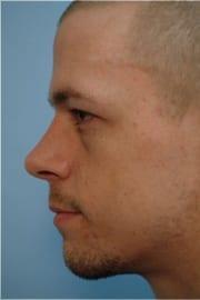 http://www.rhinoplasty.org/wp-content/uploads/2015/12/Layer-02-10.jpg