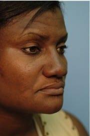 http://www.rhinoplasty.org/wp-content/uploads/2015/12/Layer-02-13-e1456857423893.jpg
