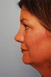 http://www.rhinoplasty.org/wp-content/uploads/2015/12/Layer-02-3-copy.jpg