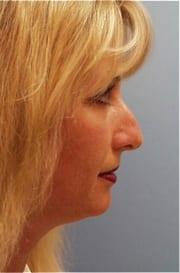 http://www.rhinoplasty.org/wp-content/uploads/2015/12/Layer-020-3-copy.jpg