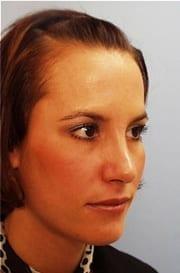 http://www.rhinoplasty.org/wp-content/uploads/2015/12/Layer-021-6-copy.jpg