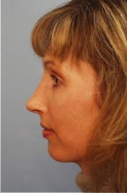 http://www.rhinoplasty.org/wp-content/uploads/2015/12/Layer-022-1-copy.jpg