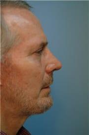 http://www.rhinoplasty.org/wp-content/uploads/2015/12/Layer-023-5-copy.jpg