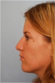http://www.rhinoplasty.org/wp-content/uploads/2015/12/Layer-024-3-copy.jpg