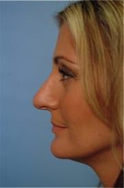 http://www.rhinoplasty.org/wp-content/uploads/2015/12/Layer-027-5-copy.jpg