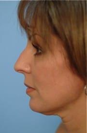 http://www.rhinoplasty.org/wp-content/uploads/2015/12/Layer-03-11-e1456857859597.jpg