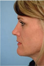 http://www.rhinoplasty.org/wp-content/uploads/2015/12/Layer-03-7-copy.jpg
