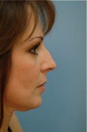 http://www.rhinoplasty.org/wp-content/uploads/2015/12/Layer-03-8-e1456857832405.jpg