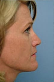 http://www.rhinoplasty.org/wp-content/uploads/2015/12/Layer-03-9-copy.jpg