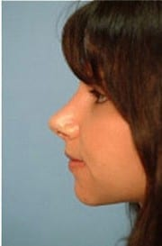 http://www.rhinoplasty.org/wp-content/uploads/2015/12/Layer-04-15-e1456858276279.jpg