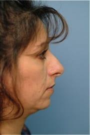 http://www.rhinoplasty.org/wp-content/uploads/2015/12/Layer-04-5.jpg