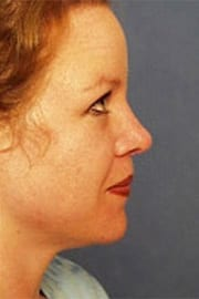 http://www.rhinoplasty.org/wp-content/uploads/2015/12/Layer-04-5-copy.jpg