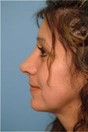 http://www.rhinoplasty.org/wp-content/uploads/2015/12/Layer-04-7.jpg