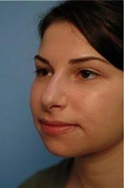 http://www.rhinoplasty.org/wp-content/uploads/2015/12/Layer-04-9-e1456858210544.jpg