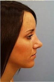 http://www.rhinoplasty.org/wp-content/uploads/2015/12/Layer-06-4-copy.jpg