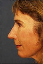 http://www.rhinoplasty.org/wp-content/uploads/2015/12/Layer-06-3-copy1.jpg