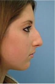 http://www.rhinoplasty.org/wp-content/uploads/2015/12/Layer-07-12-copy.jpg