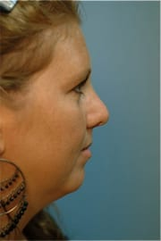 http://www.rhinoplasty.org/wp-content/uploads/2015/12/Layer-07-5-copy.jpg