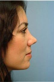 http://www.rhinoplasty.org/wp-content/uploads/2015/12/Layer-08-4-copy.jpg