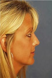 http://www.rhinoplasty.org/wp-content/uploads/2015/12/Layer-09-3-copy1.jpg