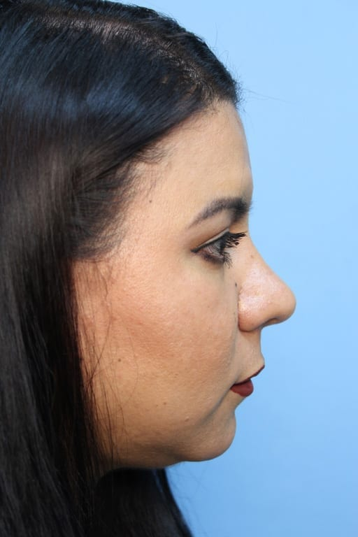http://www.rhinoplasty.org/wp-content/uploads/2015/12/OA-20170509110745770-20170912115957883.jpg