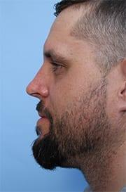 http://www.rhinoplasty.org/wp-content/uploads/2015/12/before-3-copy.jpg