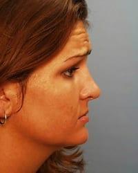 http://www.rhinoplasty.org/wp-content/uploads/2015/12/botox1_081.jpg