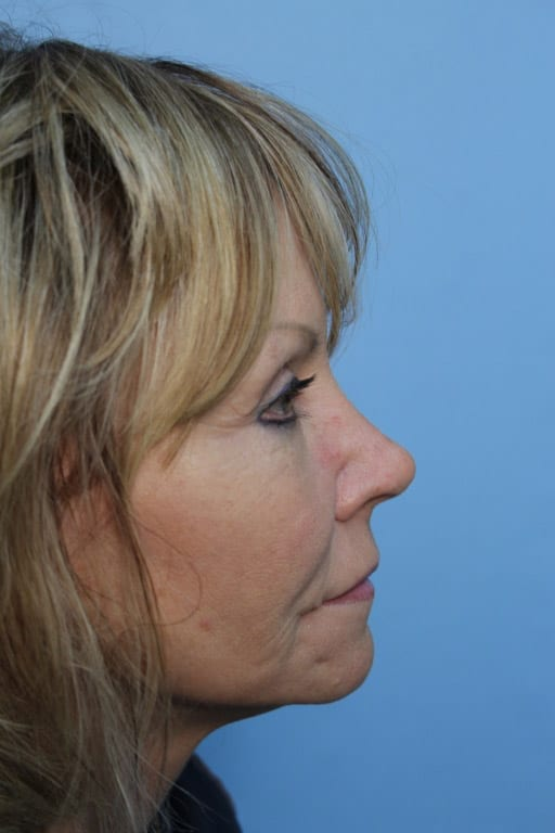 http://www.rhinoplasty.org/wp-content/uploads/2015/12/patient11-before3.jpg