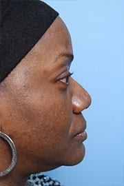 http://www.rhinoplasty.org/wp-content/uploads/2015/12/rhinoplasty-patient-03a-before.jpg