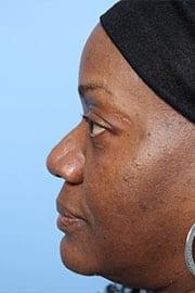 http://www.rhinoplasty.org/wp-content/uploads/2015/12/rhinoplasty-patient-03c-before.jpg