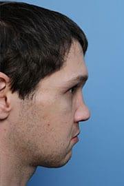http://www.rhinoplasty.org/wp-content/uploads/2015/12/rhinoplasty-patient-04c-before.jpg
